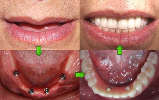 重庆种植牙_牙齿种植 - -重庆维乐口腔
