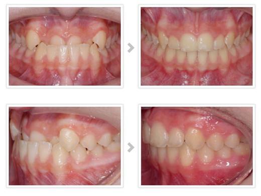 重庆牙齿整形多少钱_牙齿矫正 - -重庆维乐口腔