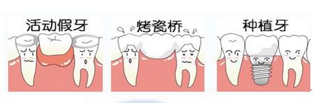 重庆种植牙_重庆做种植牙和假牙的区别-重庆维乐口腔