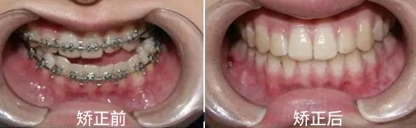 重庆牙齿整形多少钱_牙齿不齐 - -重庆维乐口腔